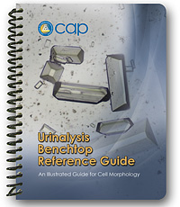 Urinalysis Benchtop Reference Guide